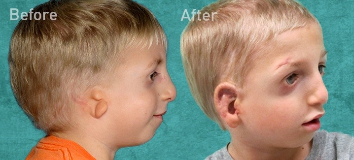 Otoplasty (Ear Surgery): Risk, Benefits, and Recovery